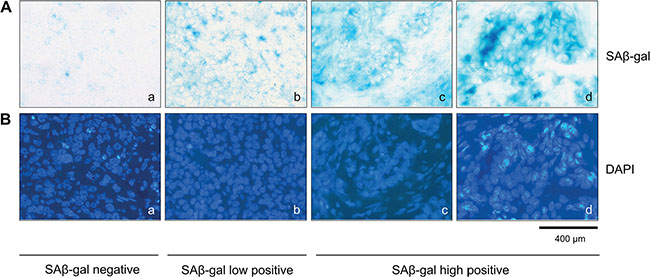 SAβ-gal positive tumor cells exist within invasive breast cancer samples.