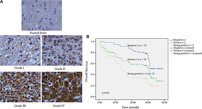 Kindlin-2 expression in intracranial glioma samples and the effects of Kindlin-2 expression on patient prognosis.