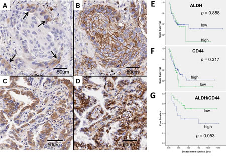 ALDH and CD44 expression in clinical lung cancers.