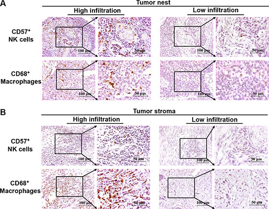 Immunohistochemical analysis of CD57+ NK cells and CD68+ macrophages in esophageal cancer tissues from stage II+III patients.