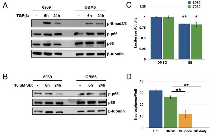 TGF-β is one source of NF-κB activation in GBM.