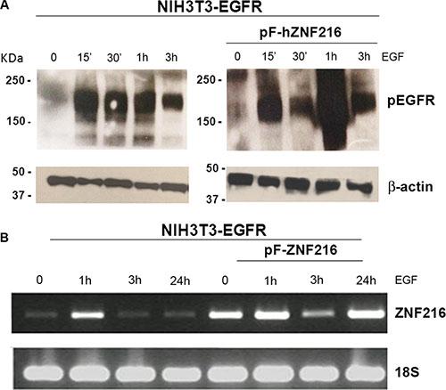 EGF-induced ZNF216 gene expression correlates with EGFR phosphorylation.