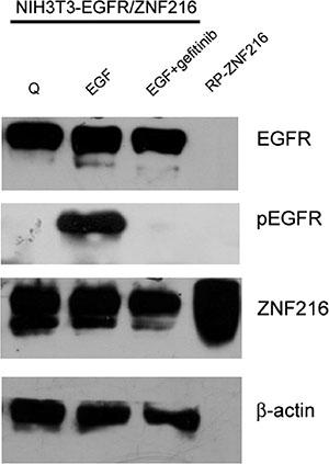 Effect of Gefitinib on EGF-induced ZNF216 protein expression.