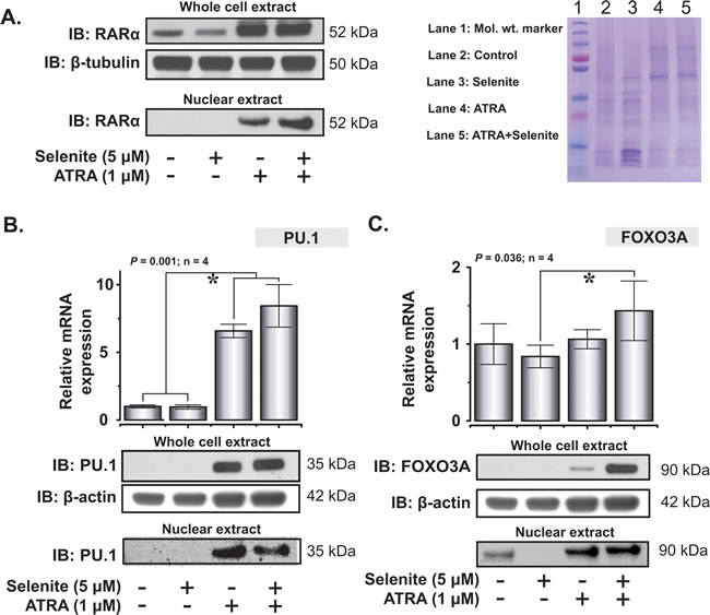 Restoration of expression of key differentiation-associated transcription factors in NB4 cells following ATRA or combined treatment with selenite.