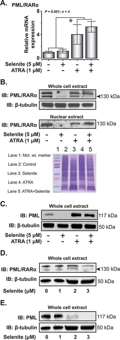 Selenite selectively degrades PML/RARα oncoprotein.
