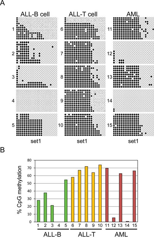 Variable UHRF2 methylation patterns in human leukemias.
