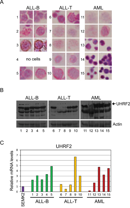 UHRF2 expression is altered in human leukemias.