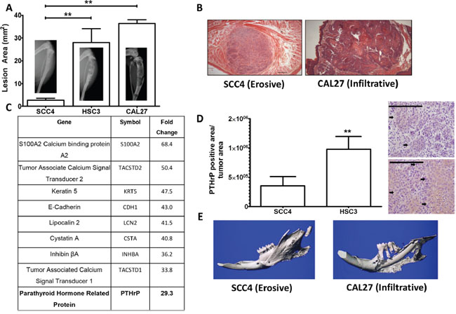 PTHrP mRNA levels predict bony invasion and bone destruction in two mouse models.