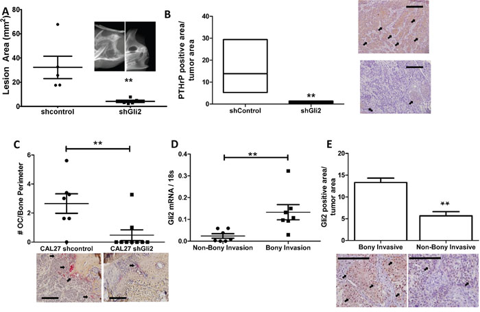 Gli2 is required to increase PTHrP expression, bony invasion and bone destruction.