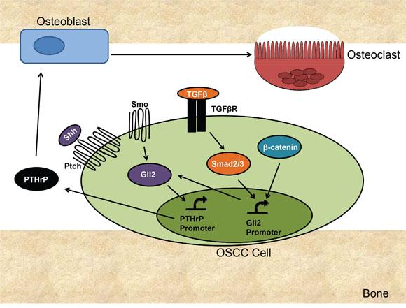 Proposed Mechanism of Gli2 Mediated Bone Destruction in OSCC.