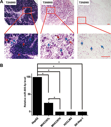 Expression of miR-885-5p is downregulated in highly malignant HCC tissues and cell lines.