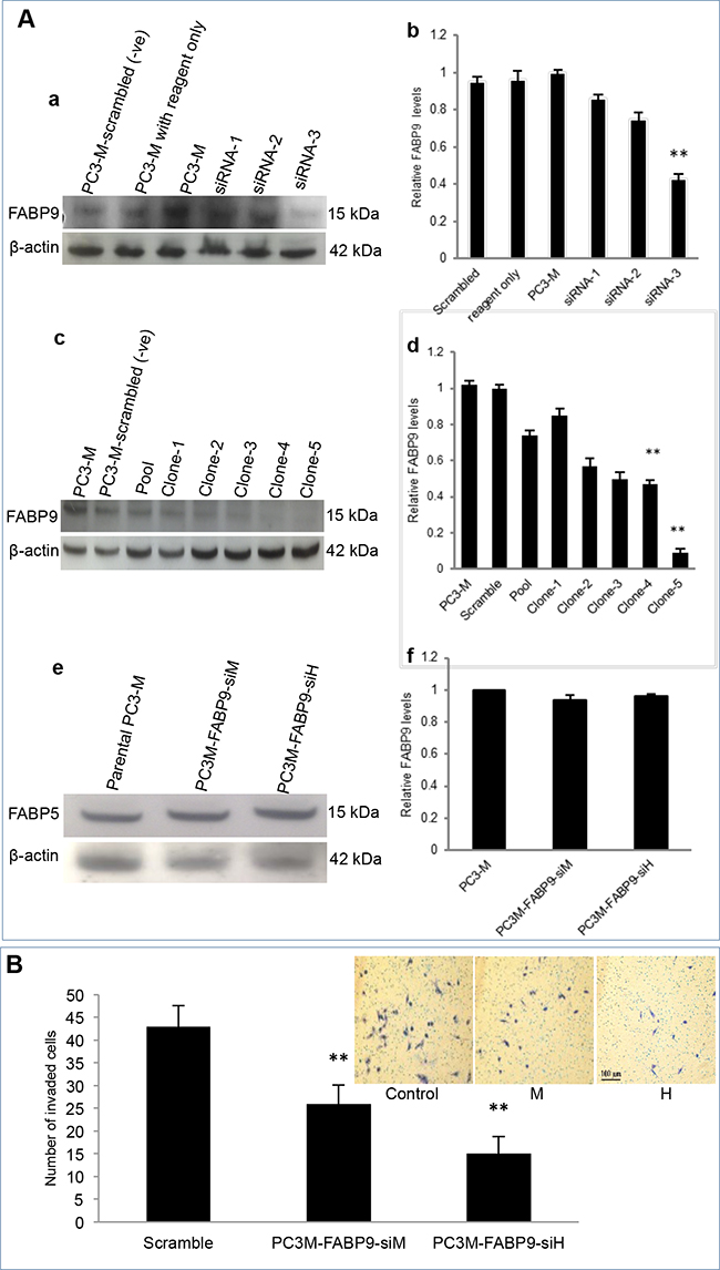 Knockdown of FABP9 mRNA in highly malignant prostate cancer cells and testing the invasiveness of the transfectants expressing reduced levels of FABP9.