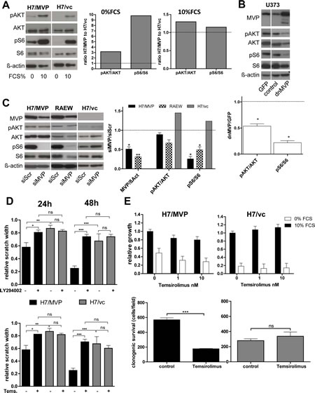 MVP supports migration and starvation resistance of GBM cells mainly via PI3K pathway upregulation.