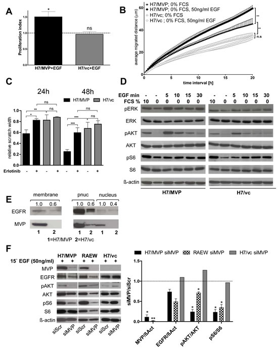 The EGF/EGFR signalling module is involved in MVP-mediated GBM cell survival, migration and PI3K pathway upregulation.