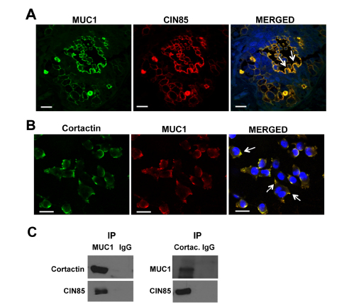 CIN85 and MUC1 colocalize in invadopodia-like protrusion structures in breast cancer.