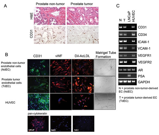 Characterization of primary cultures of endothelial cells isolated from NdECs and TdECs prostate tissue.