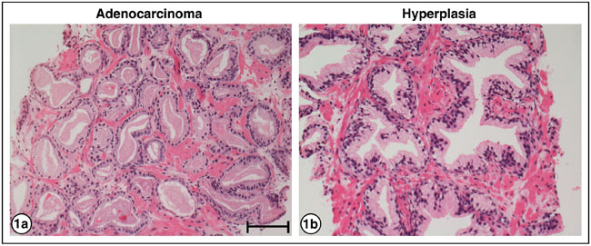 H&E staining of PrCa and BPH.