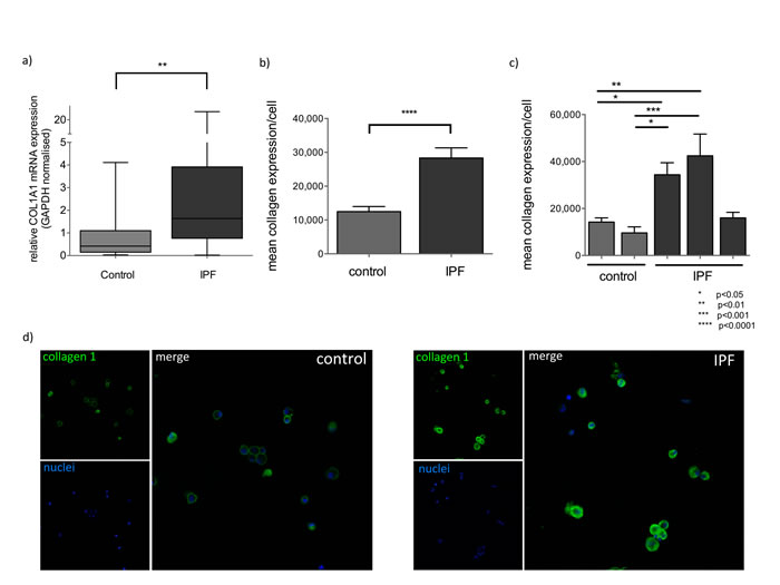 Collagen 1 expression is elevated in IPF BAL.