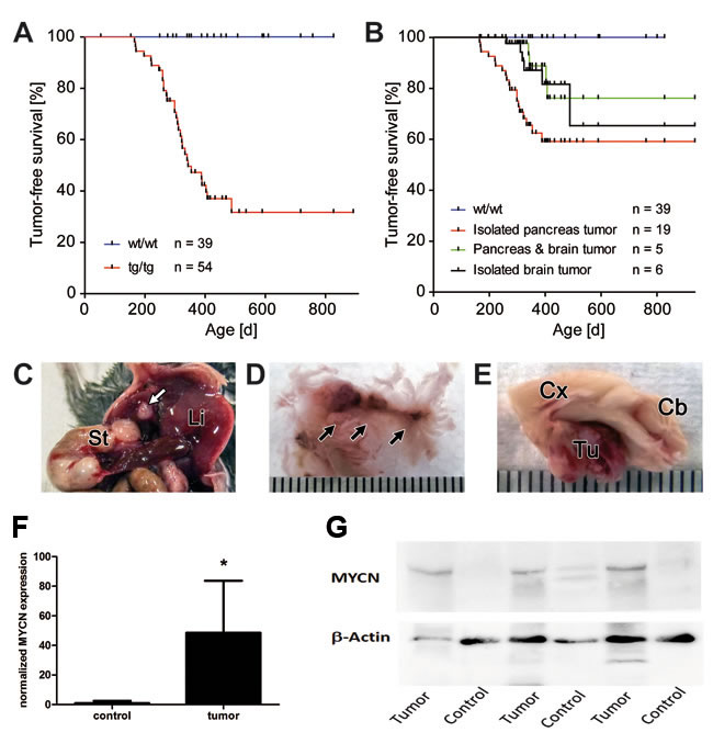 Tumor development in LSL-MYCN;hGFAP-Cre double transgenic mice.
