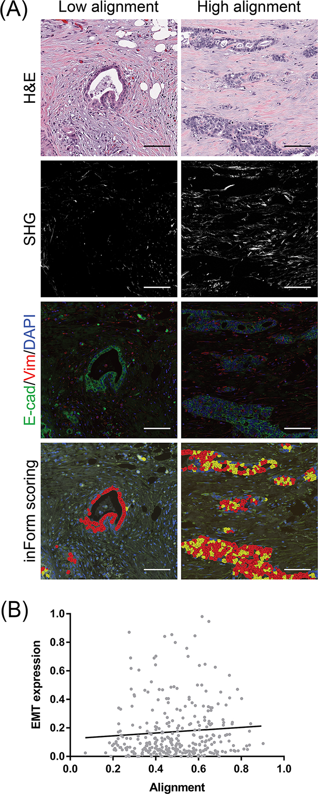 Co-localization of EMT-positive PDAC cells with stromal collagen alignment.