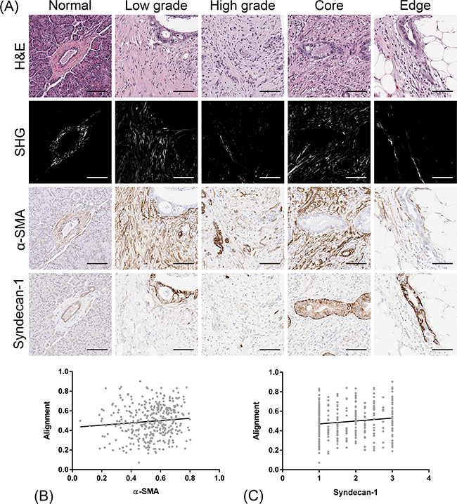 Co-localization of CAF markers (α-SMA and syndecan-1) with stromal collagen alignment.