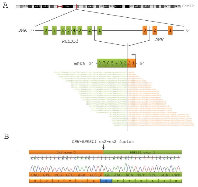 DHH-RHEBL1 is a novel fusion transcript recurrent in pediatric CBFA2T3-GLIS2 positive AML.