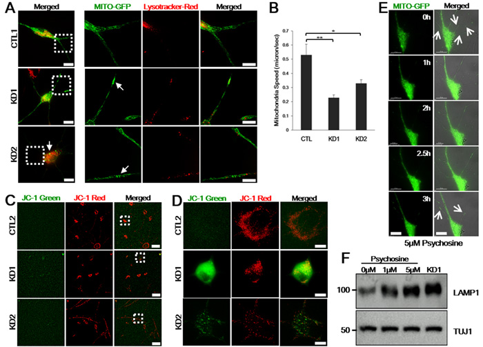 Psychosine induces lysosome accumulation, neurite and mitochondrial defects in control iNeurons.