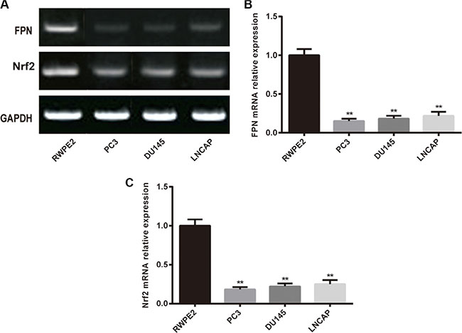 The expression of FPN in RWPE2 cells and prostate cancer cell lines (PC3, DU145 and LNCAP).