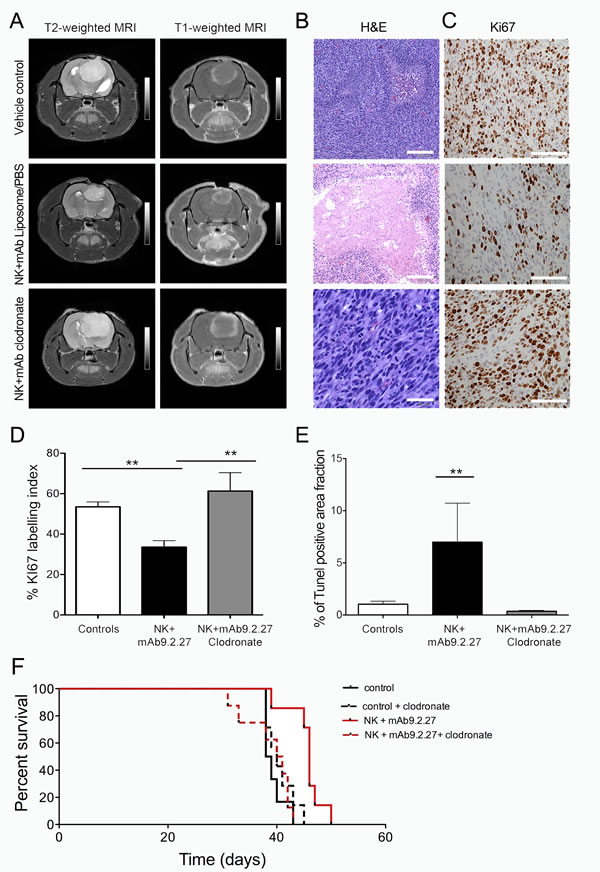 In vivo depletion of bone marrow derived macrophage abrogates therapeutic benefit from combined NK+mAb9.2.27 treatment.