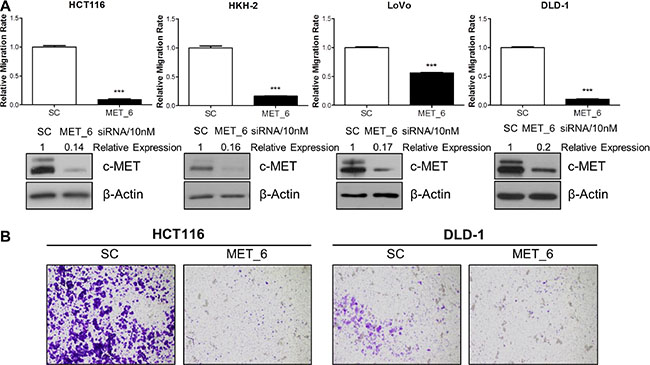 c-METi reduces migration and invasion of CRC cell lines.