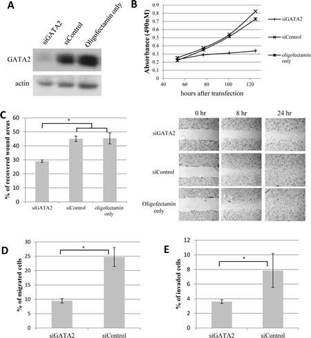 Knock-down of GATA2 gene expression decreases proliferation, migration and matrigel invasion of prostate cancer cells.