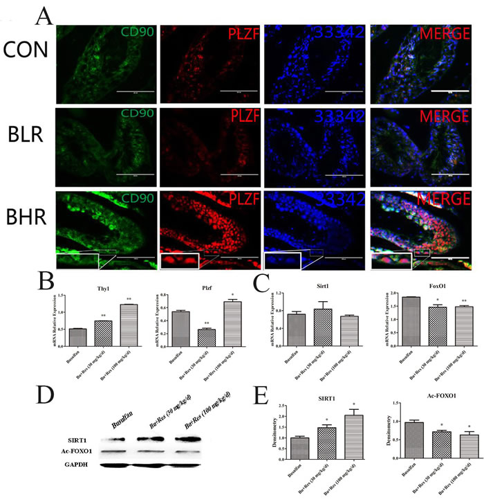 The potential role of Res function on the busulfan-induced mice infertility model.