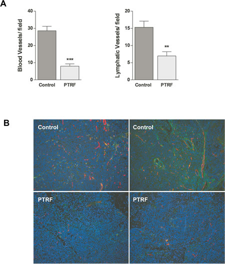 Effect of PTRF expression in PC3 prostate cancer cells on tumour angiogenesis and lymphangiogenesis