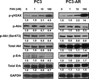 PC3 and PC3-AR cells were treated with increasing concentrations of panobinostat for 24 hours.