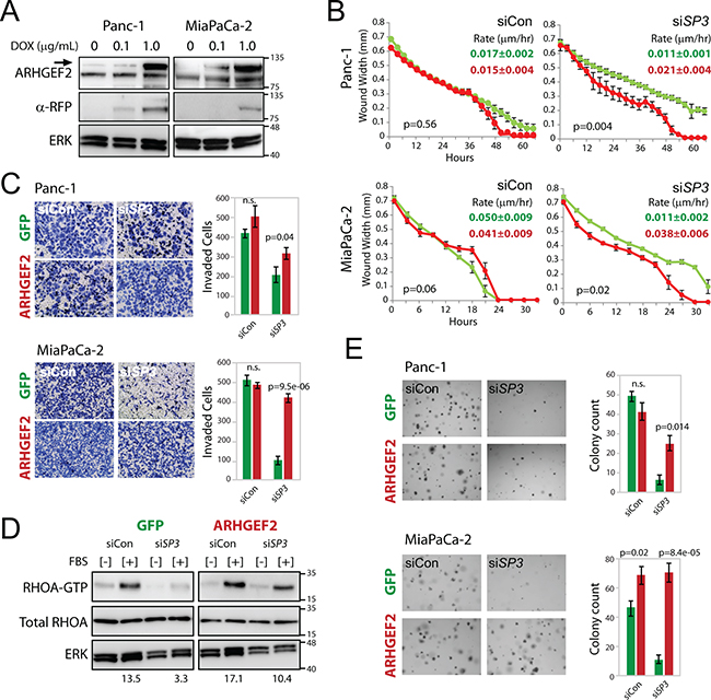 Enforced expression of ARHGEF2 rescues the SP3 knockdown phenotypes through restored activation of RHOA.