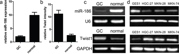 Relative miR-186 and Twist1 expression in GC tissues.
