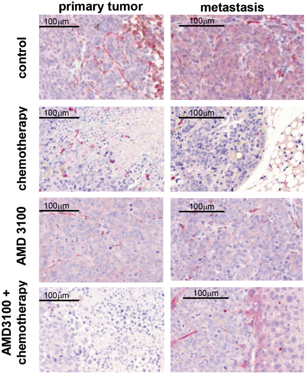 Representative images of CXCR4 (red) and CXCL12 (brown) immunohistochemical double staining on primary tumors and metastases.