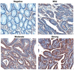 Immunohistochemical detection of