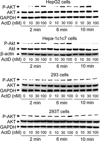 Phosphorylation of AKT induced by actinomycin D (ActD).