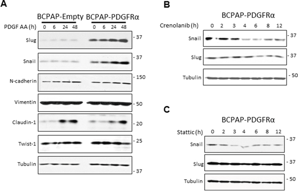 PDGFRα sensitizes cells to epithelial mesenchymal transition.