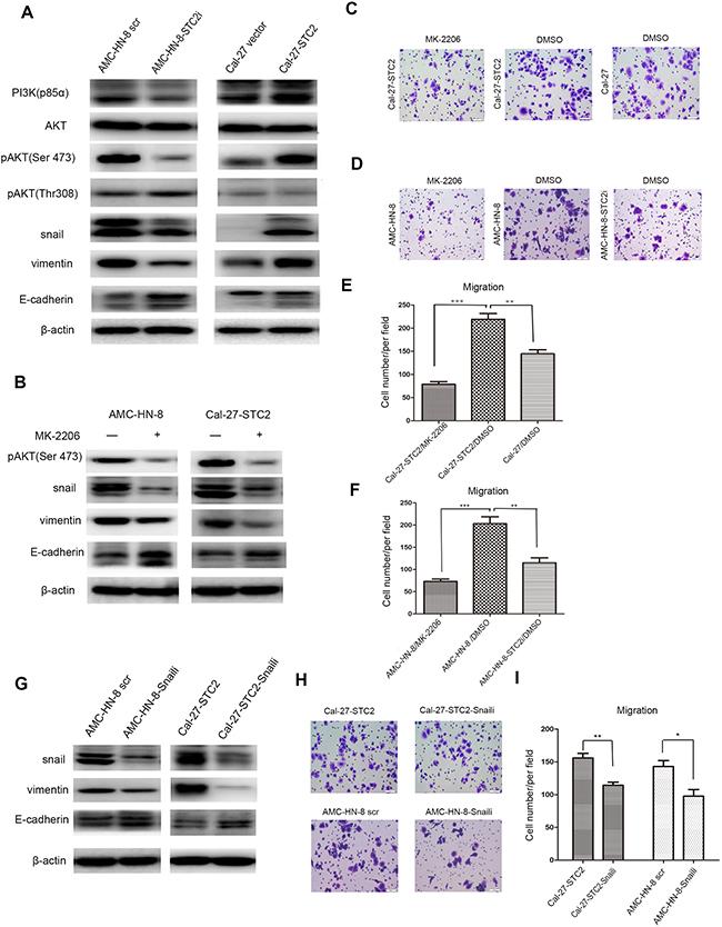STC2 modulates HNSCC metastasis through the PI3K/AKT/Snail signaling.