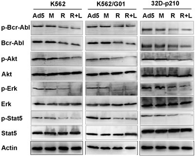 Effect of RNTS on cytoplasmic signaling pathways downstream of Bcr-Abl kinase.