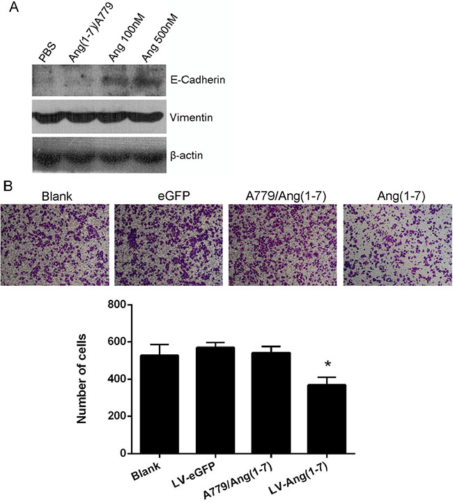 Effects of Ang-(1-7) on Spc-A1 cell EMT.