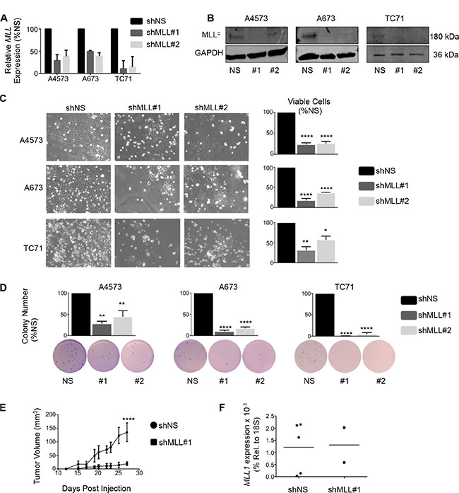 Knockdown of MLL1 in Ewing sarcoma cells reduces proliferation and tumorigenicity.