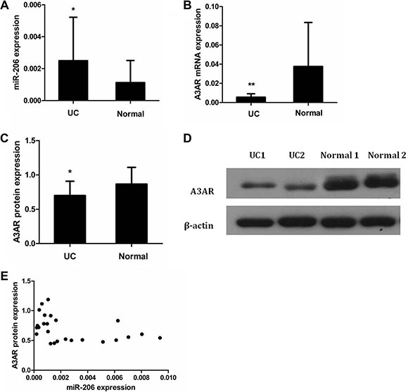 Expression and correlation of miR-206 and A3AR in UC tissues.