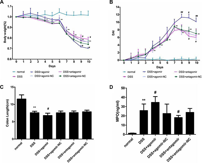 miR-206 increases the severity of DSS-induced colitis.
