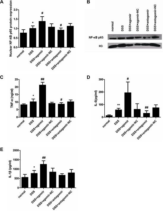 miR-206 upregulates nuclear NF-κB p65 expression and TNF-α/IL-8/IL-1β levels in mouse colon.