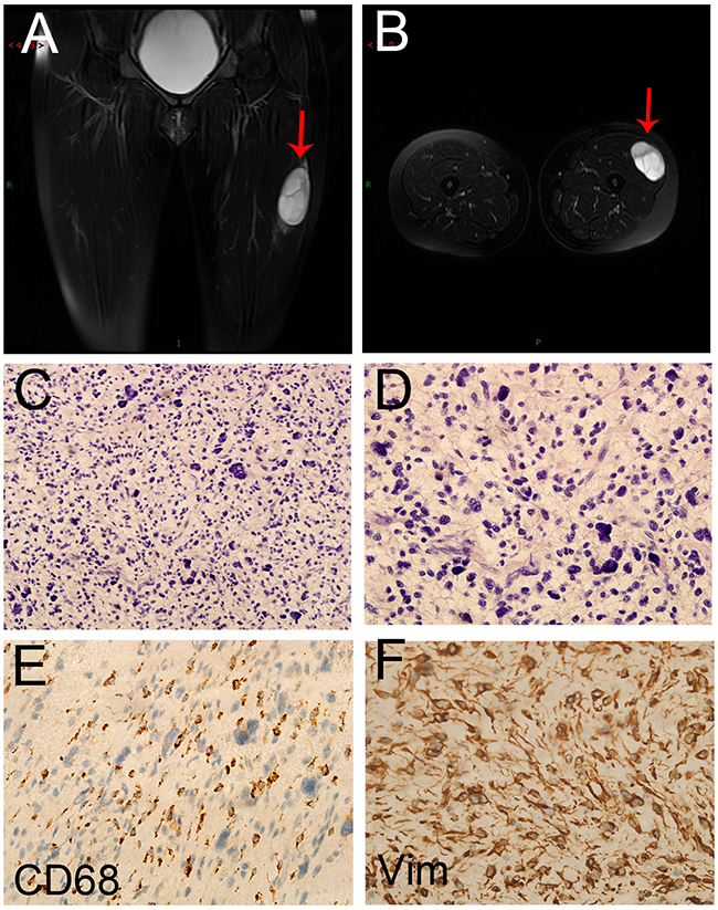 The image and pathological data of the primary lesion in the CR patient.