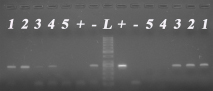 mRNA expression of LHRH-I (left panel) and its type I receptor (right panel) in the same tissue specimen set.