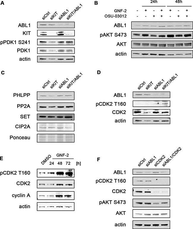 AKT activation after siRNA-mediated knockdown or chemical inhibition of ABL1 is mediated by CDK2.